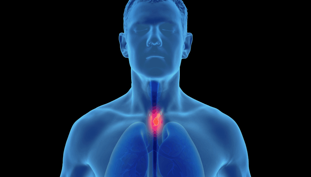 AI For Detecting Esophageal Cancer