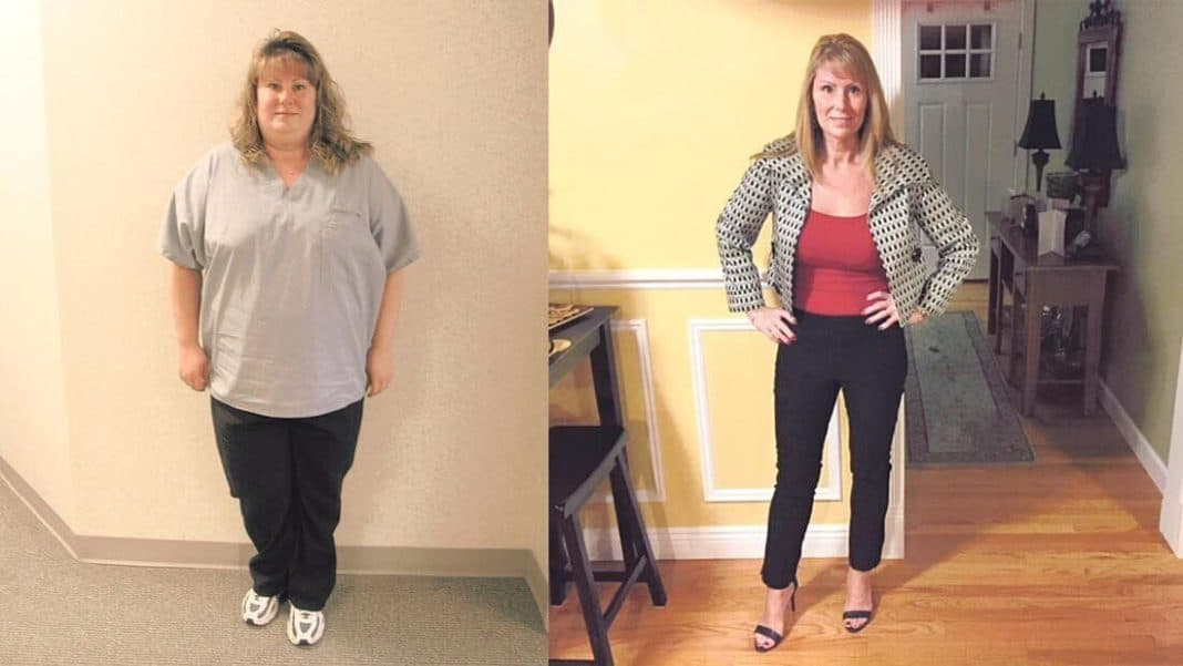 Mom's weight-loss surgery reduces some pregnancy complications while increasing others