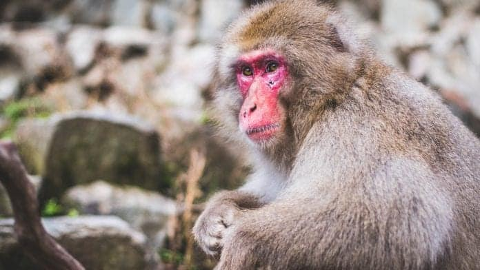 The U.S Residents Have Monkeypox; Spread Risk Is Low