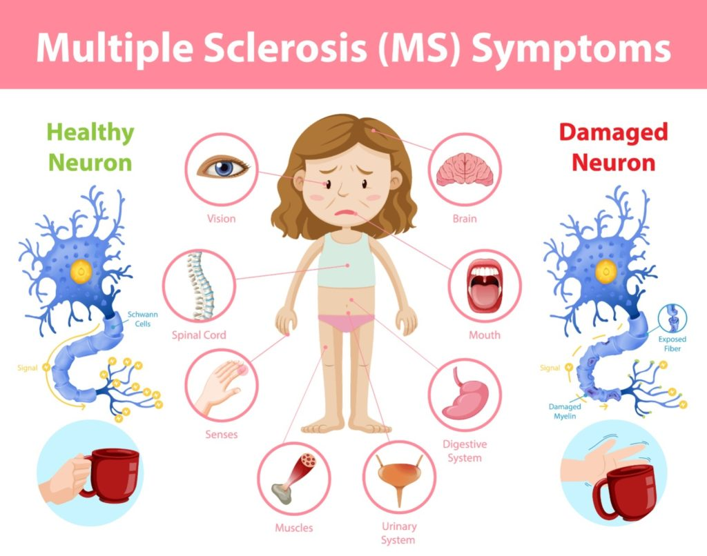 T Cell Treatments For Multiple Sclerosis